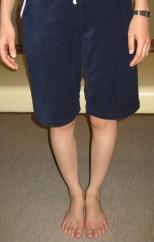 神奈川県秦野市の整体のO脚矯正例1a
