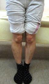 神奈川県秦野市の整体のO脚矯正例7b