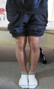 神奈川県秦野市の整体のO脚矯正例8b